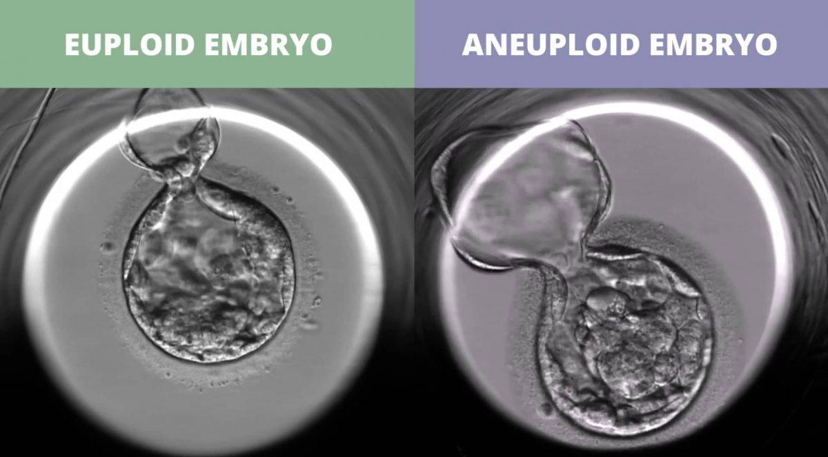 euploid_vs_uneuploid-1200x663.jpg